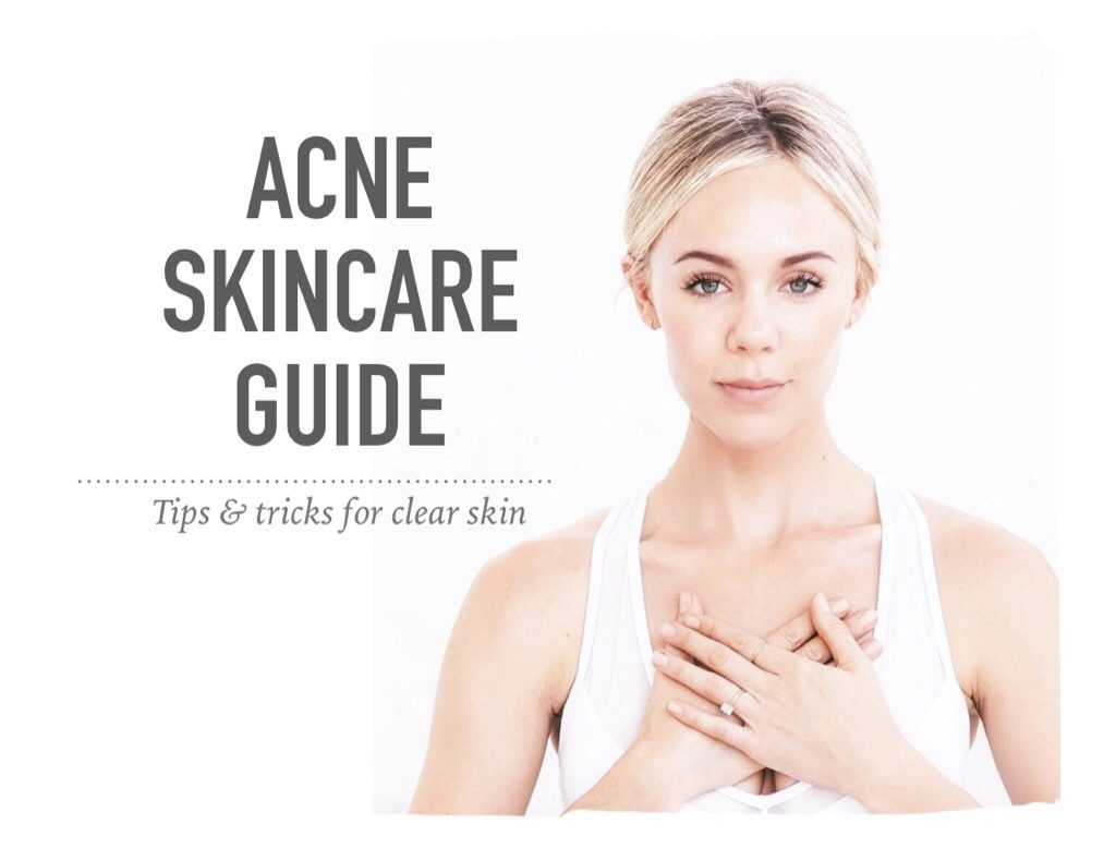 Acne Skincare Guide