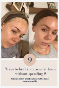 9 ways to heal your acne without breaking the bank #acne #acnesolutions #glowingskin #pimple #skincare
